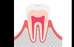 C0 虫歯の前兆
