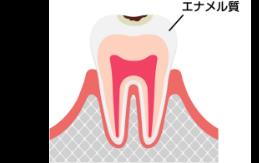 C1 軽度の虫歯
