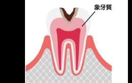 C2 中度の虫歯