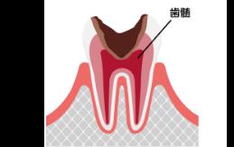 C3 重度の虫歯