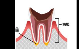 C4 最重度の虫歯