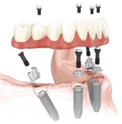 義歯とインプラントの併用治療も行っています