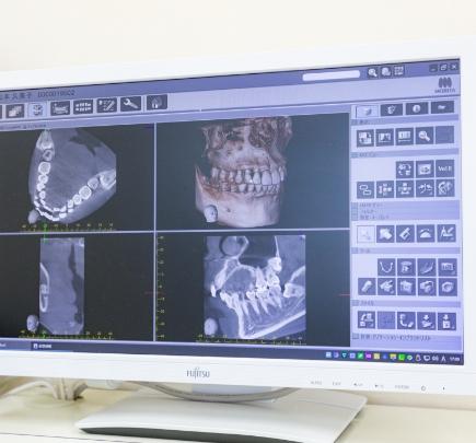 CTによる診断