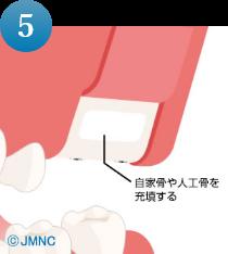 サイナスリフト手順5