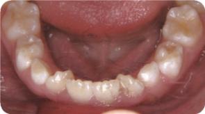 前歯写真02