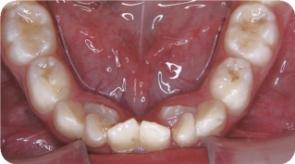 前歯写真03